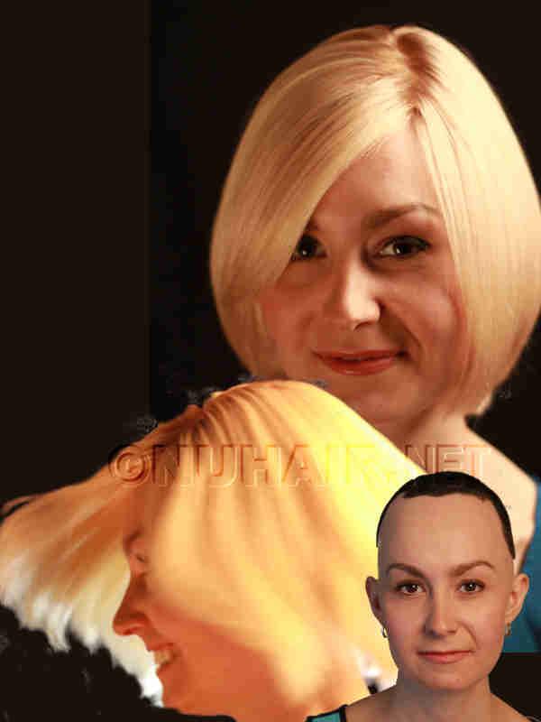 Blonde Hair Wig Human Hair Alopecia Wig DFW TX