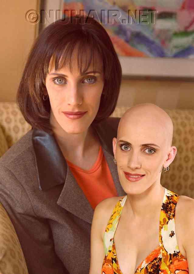Alopecia Medical Wig DFW TX