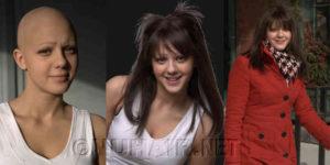 Medical Alopecia Hair Loss Wig