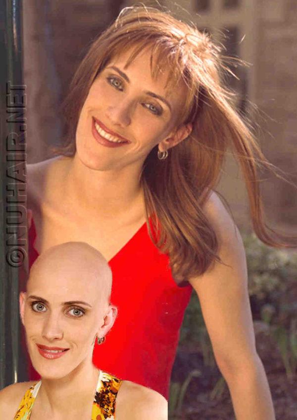 Texas Alopecia Wig Medical Wig for Hair Loss in Dallas