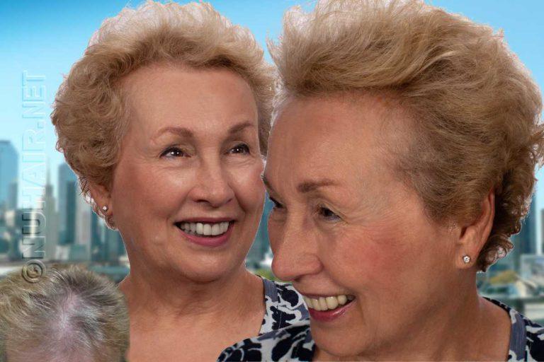 Laser hair therapy treatment for hair loss MEP90 Dallas Texas