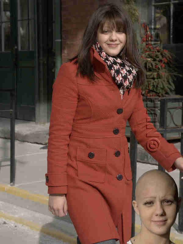 Alopecia Wig Dallas Best Medical Wigs